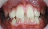 子供の歯並びが悪く上下顎の成長に差異