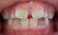 こどもの歯並びが悪い